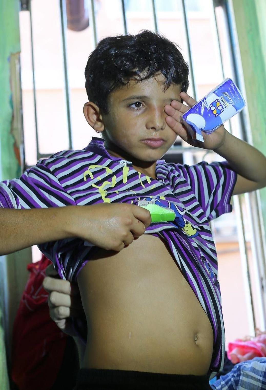 İzmir'de mendil satarken dövülen Ahmed vücudundaki darp izlerini gösterdi