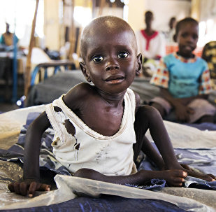 Güney Sudan / Afrika / Çocuk / Açlık