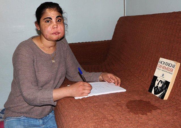 Türkiye'de yüz nakli yapılan ilk kadın olan Hatice Nergis, memleketi Kahramanmaraş'ta toprağa verildi.