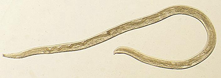 Göz paraziti 'Thelazia gulosa'
