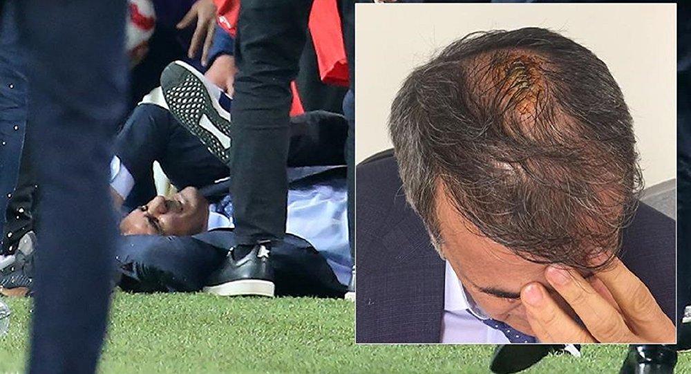Fenerbahçe-Beşiktaş derbisinde Şenol Güneş yaralandı