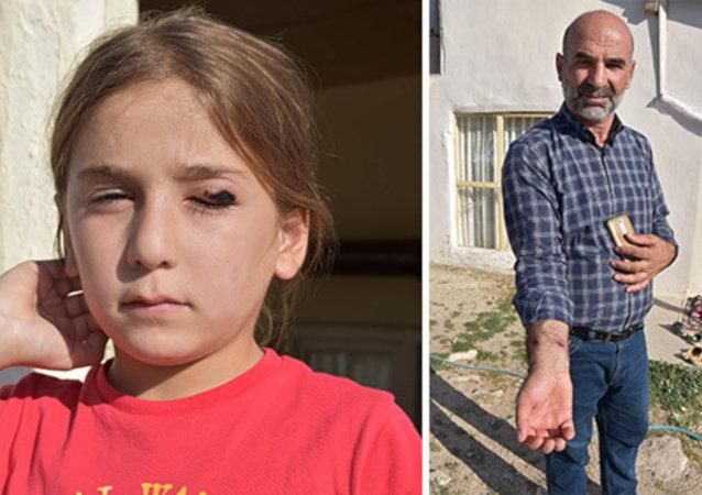 Sivas'ta 'şarbon' paniği, köy karantinaya alındı