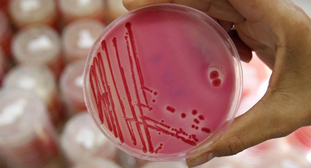 An analytical chemist shows a petri dish with salmonella in the Institute for Chemical and Veterinary Research in Stuttgart, southwestern Germany