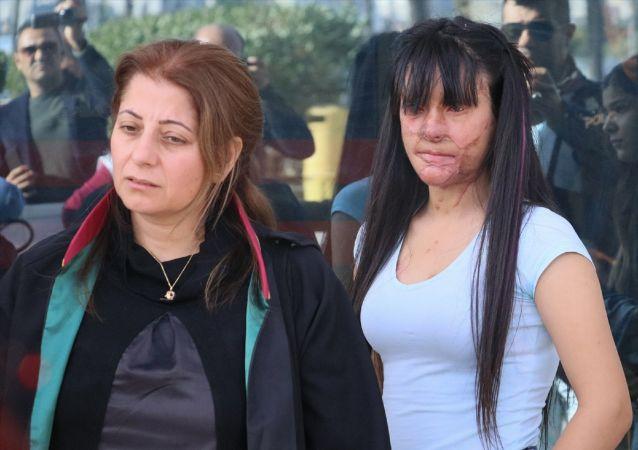 Hatay'ın İskenderun ilçesinde, 19 yaşındaki Berfin Özek'in(sağda) yüzüne asit dökerek sağ gözünü kaybetmesine ve yüzünün bir bölümünün yanmasına neden olduğu ileri sürülen sanığın, kasten öldürmeye teşebbüs suçundan müebbet hapis cezası istemiyle yargılandığı davanın duruşması görüldü. Özek ve avukatı Mehtap Sert(sodla) açıklamada bulundu.