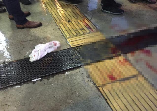 İzmir'in Tire ilçesinde, kimliği belirsiz bir kişi tarafından sokak ortasında tabancayla vurulanErdal Kıran(29) yaşamını yitirdi