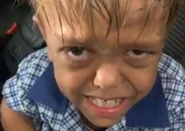 Avustralya'da cüce olduğu için okulda arkadaşlarının zorbalığı ile karşı karşıya kalan Quaden Bayles