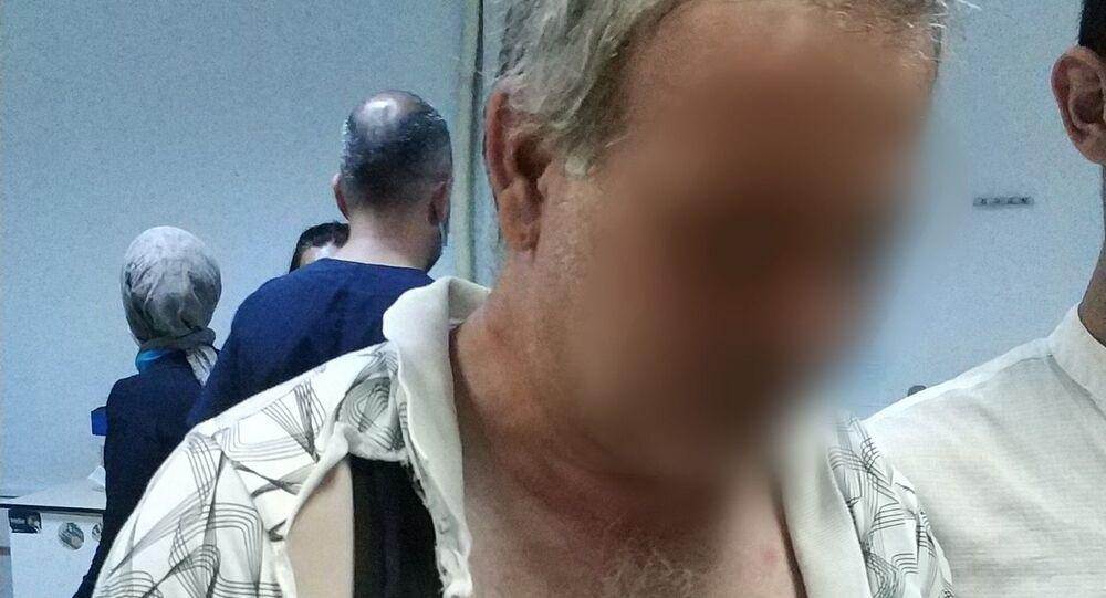 Samsun'da alkollü olduğu iddia edilen bir kişi sokakta saldırdığı görme engelli vatandaşı hastanelik etti.