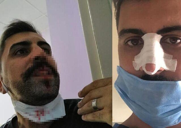 Hasta yakını, sosyal mesafe uyarısı yapan hemşirenin burnunu kırdı - Sinan Doğan