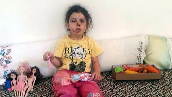 Konvoy yasağına rağmen havaya ateş açıldı, 5 yaşındaki çocuk yaralandı - Sputnik Türkiye