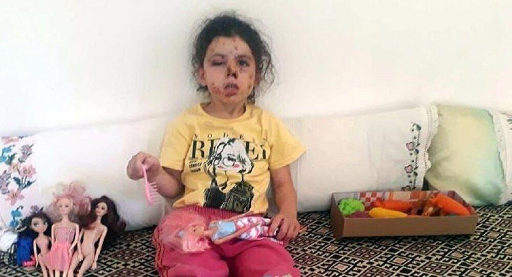 Konvoy yasağına rağmen havaya ateş açıldı, 5 yaşındaki çocuk yaralandı