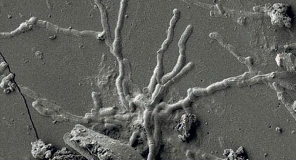 2 bin yıl önceye ait kafatasındaki sağlam beyin hücresi, İtalya