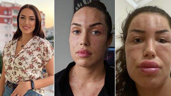 Gençlik aşısı yaptıran kadın - Sputnik Türkiye