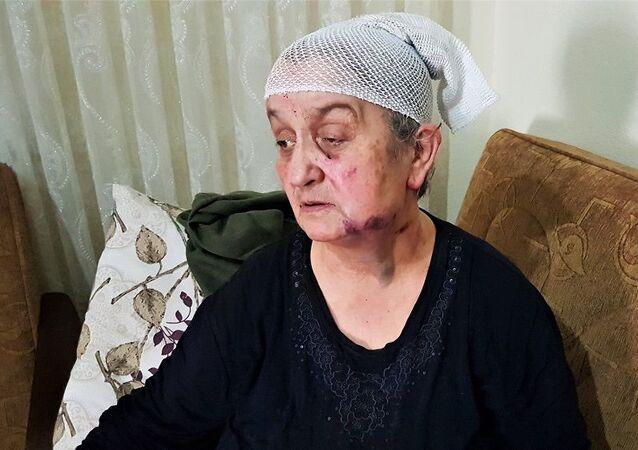 Yaşlı kadın, yaralı yaşlı kadın, hırsızdan ölü taklidi yaparak kurtuldu