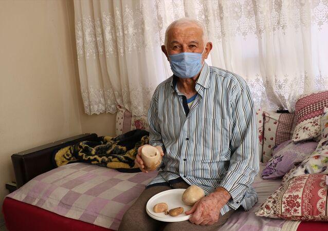 Denizli'de 73 yaşındaki hasta mesanesinden çıkartılan 2 kilogram taşı hatıra olarak saklayacak