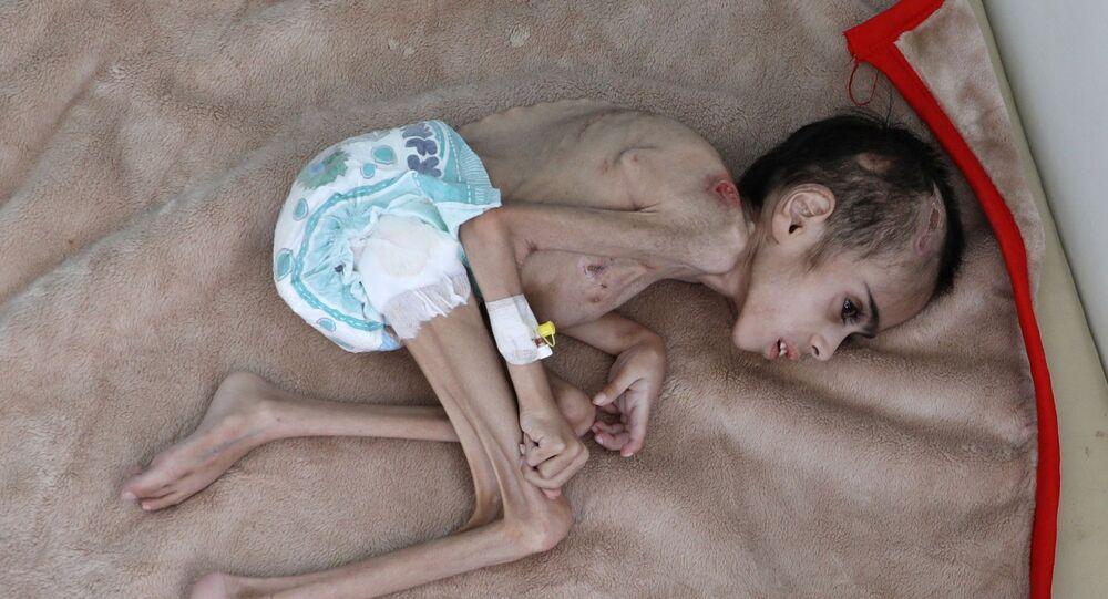 7 yaşındaki Faid Samim'in ağırlığı yaklaşık 7 kilogram