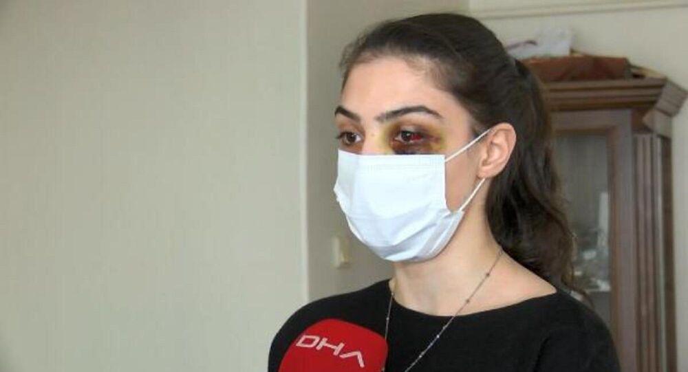 eşi tarafından dövülen 20 yaşındaki Tülay T.