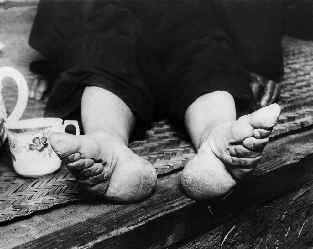 Küçücük kızların ayak parmaklarının kırılıp ipekten sargılarla iyice bağlanması metodu, 20. yüzyıl başlarına kadar başta aristokratlar, milyonlarca Çinli kadının canını yaktı. Kadınlar için küçük ayaklı görünmek daha iyi ve güzel  algılandığından 6 yaşından itibaren kızların ayakları bandajla sarılırdı. Böylece ayak ilerleyen dönemde büyüyemez ve küçük kalırdı.