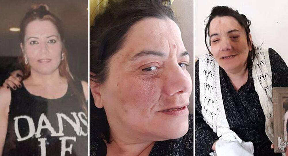 Damak tedavisinde sinir kesilince yüz felci oldu: 'Nefes almakta bile zorlanıyor, ilaç içip tüm gün uyuyor'