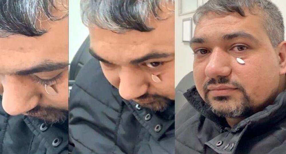 Gözünden metal parça çıkarılan Mehmet Cihangir Göv
