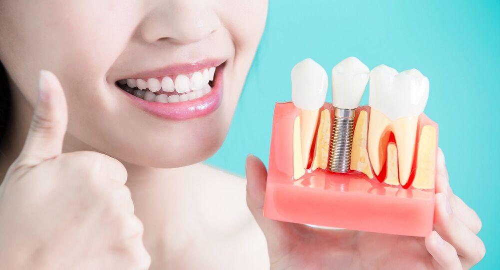 diş - diş implantı