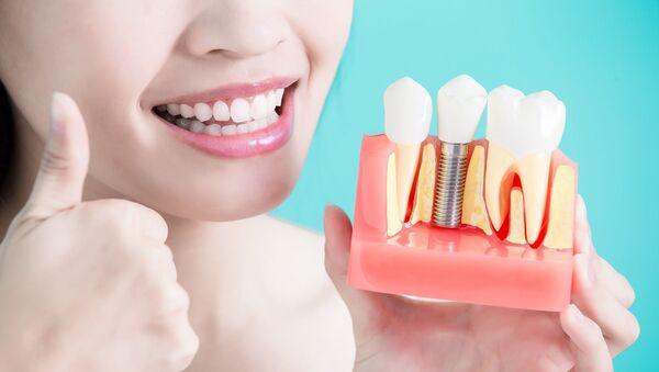diş - diş implantı  - Sputnik Türkiye