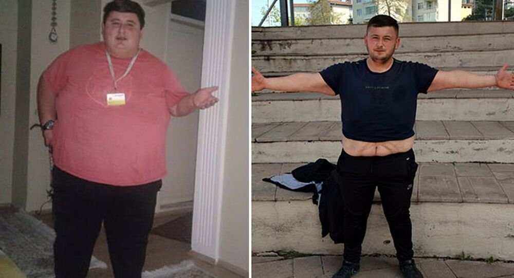 Kız arkadaşının ailesi evlenmelerine izin vermeyince 212 kilo verdi