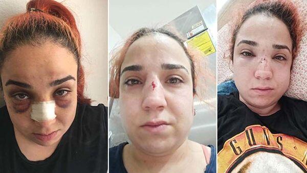 İzmir'de kafe çalışanı kadın, patronu tarafından fırça süpürgeyle darbedildi - Sputnik Türkiye