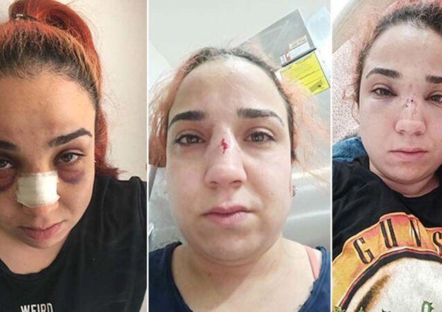 İzmir'de kafe çalışanı kadın, patronu tarafından fırça süpürgeyle darbedildi