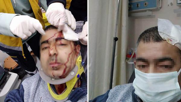 İmamın tabureyle saldırdığı müezzinin kafasına 10 dikiş atıldı - Sputnik Türkiye
