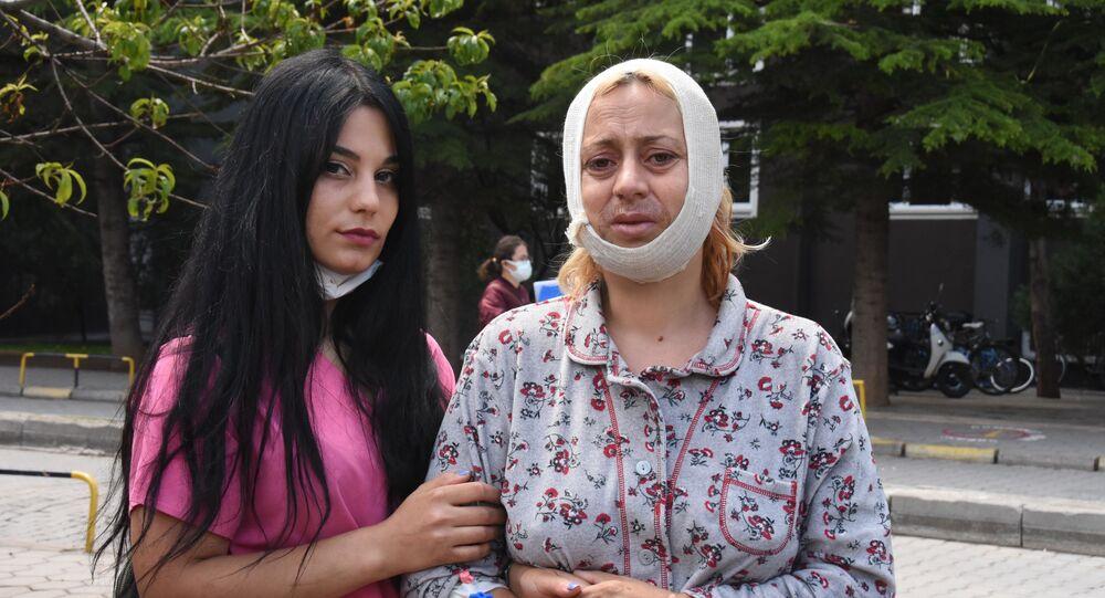 Köpek beslerken saldırıya uğrayan kadın: Sadece Allah'ın sessiz kullarını doyuruyorum diye bu muameleyi gördüm