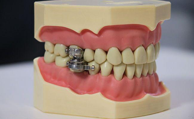 DentalSlim Diet Control: Kilitleme cıvataları olan manyetik bileşenlik alet, ağzın sadece 2 mm açılmasına izin vererek katı yiyeceklerin içeri alınmasını engelliyor.