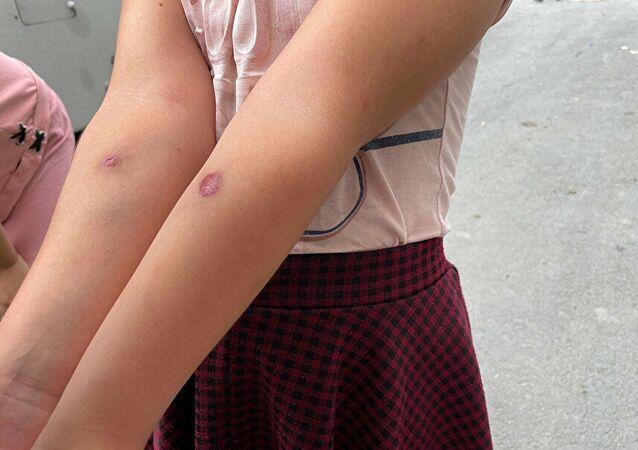 İstanbul'da sivrisinek paniği: Çocuklarda çıban gibi yaralar oluştu