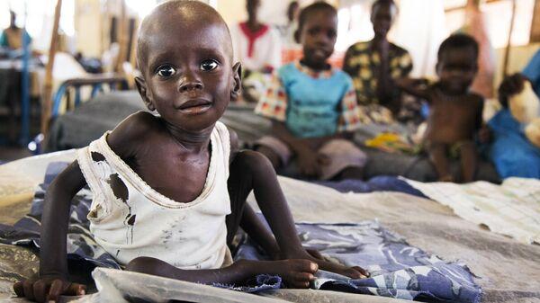 Güney Sudan / Afrika / Çocuk / Açlık - Sputnik Türkiye