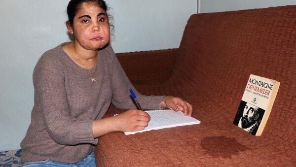 Türkiye'de yüz nakli yapılan ilk kadın olan Hatice Nergis, memleketi Kahramanmaraş'ta toprağa verildi. - Sputnik Türkiye