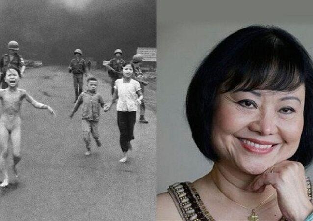 Napalm kızı Kim Phuc