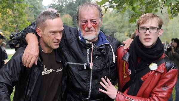 Almanya'da TOMA suyuyla yaralanan gösterici - Sputnik Türkiye