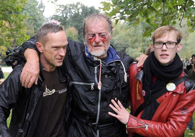 Almanya'da TOMA suyuyla yaralanan gösterici