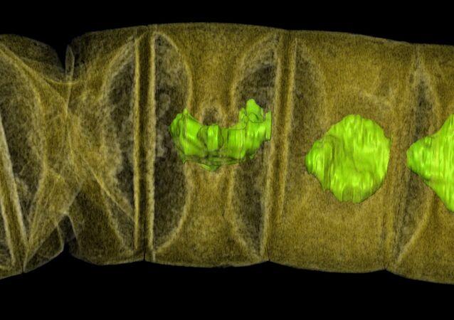 Hindistan'da bulunan fosillerin X-Ray görüntüsü