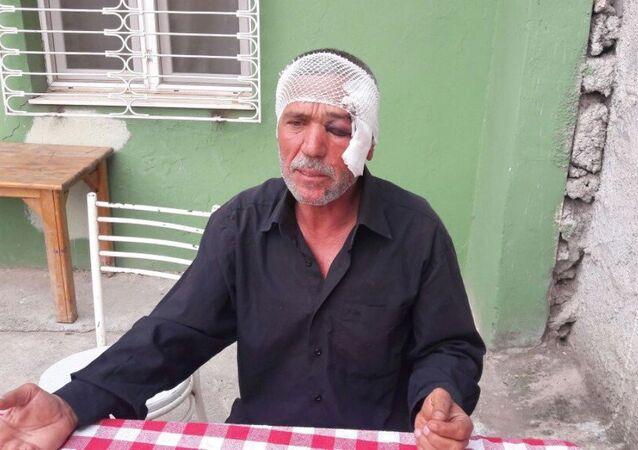 Adana'da 'Hayır' dediği için darp edilen Bekir Polat