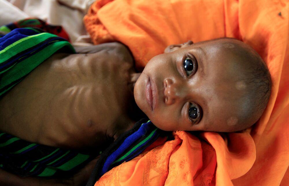 Somali - açlık
