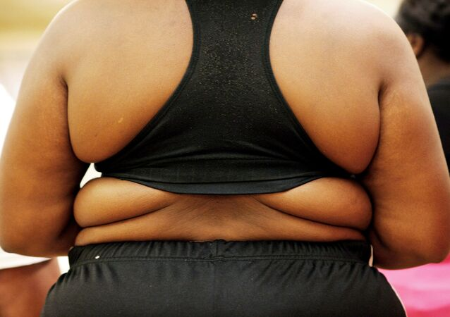Obez / Obezite / Şişman