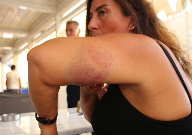 Bodrum'da caretta caretta saldırısı