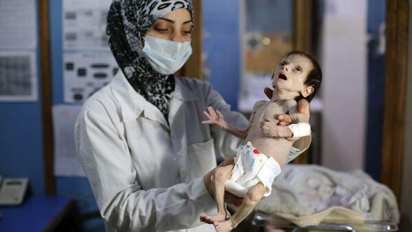 Şam'ın Doğu Guta bölgesindeki bir sağlık merkezinde, yetersiz beslenmekten dolayı gözetim altında tutulan bir bebek - Sputnik Türkiye