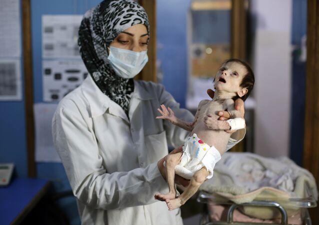 Şam'ın Doğu Guta bölgesindeki bir sağlık merkezinde, yetersiz beslenmekten dolayı gözetim altında tutulan bir bebek