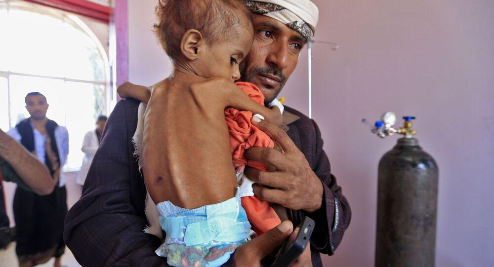 Başkent Sana'daki bir hastaneye yetersiz beslenmeden muzdarip çocuğunu getiren Yemenli bir baba