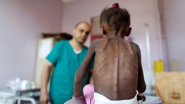 Yemen'de yetersiz beslenme nedeniyle sağlık sorunları yaşayan bir çocuk - Sputnik Türkiye
