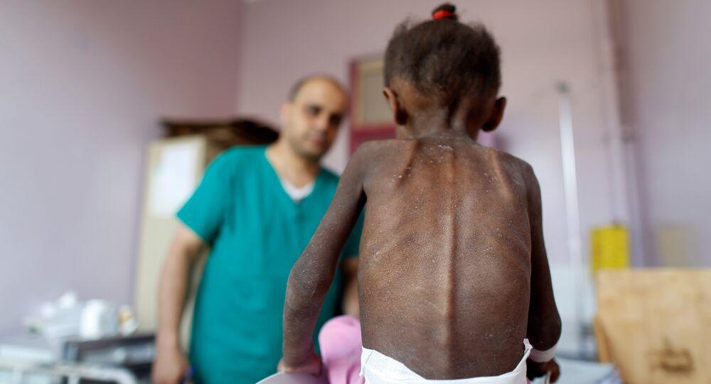 Yemen'de yetersiz beslenme nedeniyle sağlık sorunları yaşayan bir çocuk