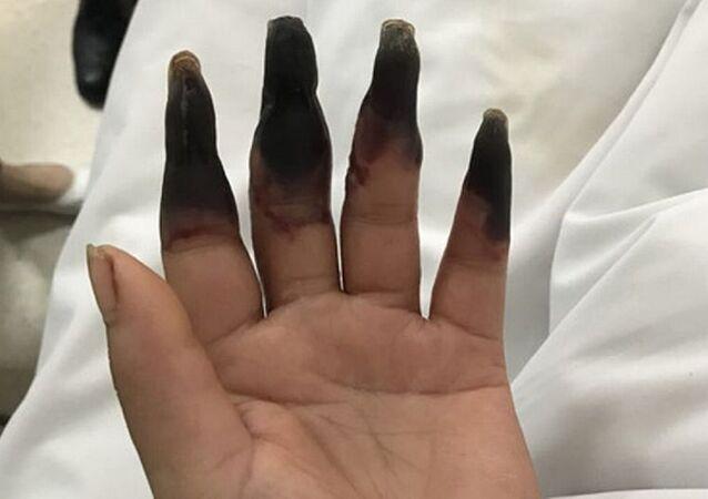 Elindeki ufak kesik nedeniyle 8 parmağını birden kaybediyordu