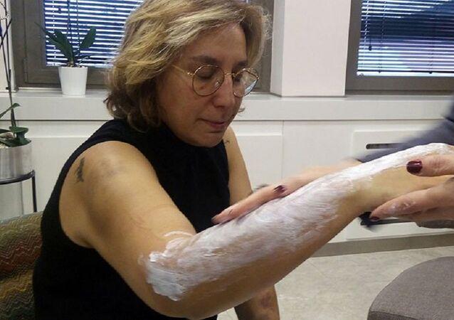 Doktora beyzbol sopasıyla saldırı: 'Sadece ellerime ve kollarıma darbe vurdular'