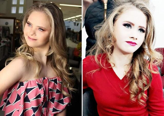 Down sendromlu 14 yaşındaki genç kız model oldu